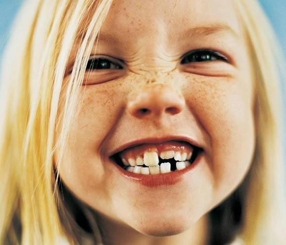 que significa soñar que se te caen los dientes